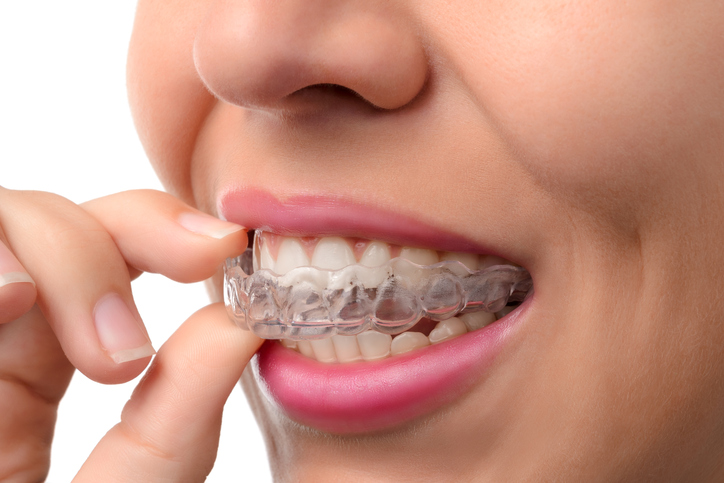 Types of aligners